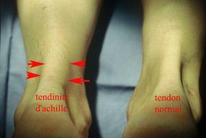 Tendons d'Achille - tendinites